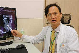 頸部硬塊未理會 老菸槍男罹下咽癌三期