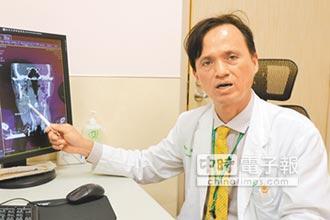頸硬塊未理會 竟是下咽癌3期