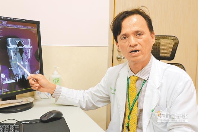 亞大醫院癌症中心副院長黃文豊指出患者腫瘤位置,強調若發現身體不適應儘速就醫治療。(林欣儀攝)