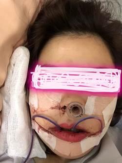 下顎矯正驚悚照以為是「集氣樓」網:美麗的代價太恐怖