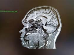吃飯總是聞到腐臭味 原來是大腦出問題