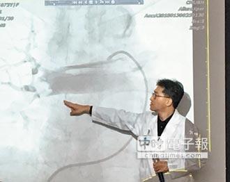 肺動脈栓塞 豬尾巴導管救命