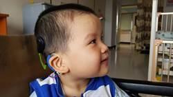 聽損兒植入電子耳有助學習 治療黃金期是關鍵