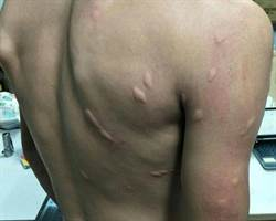 大肌肌被「吸到飽」!網驚:史前巨蚊吻的?