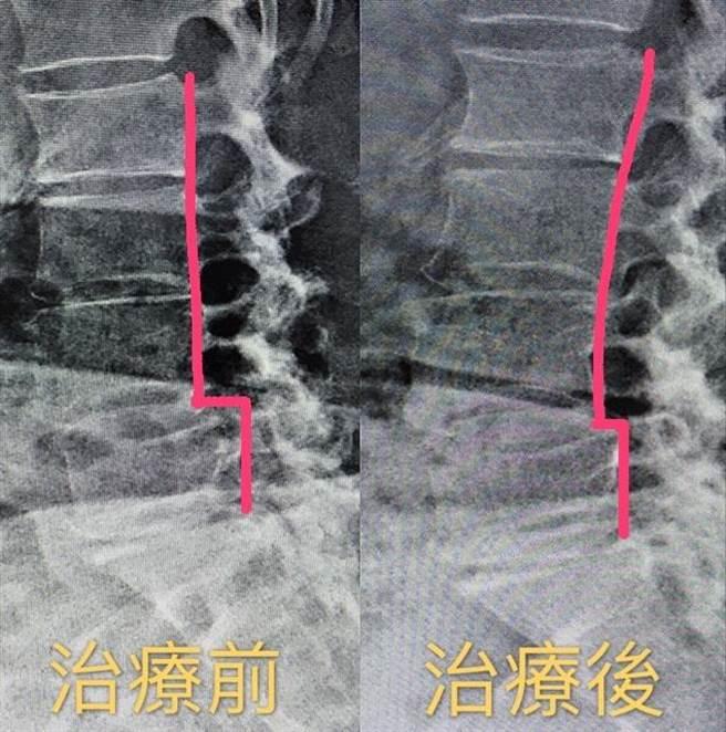 該名婦人腰椎滑脫接受徒手治療矯正,滑脫幅度獲得明顯改善。(柯宗緯翻攝)