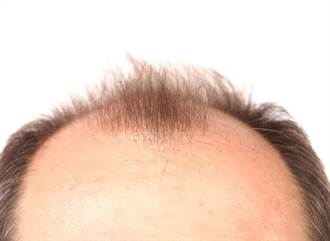 禿頭該怎麼救? 名醫教你正確洗髮6步驟