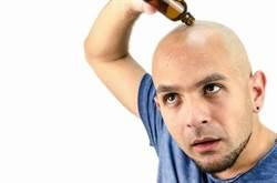 禿頭救星是它!英研究:骨鬆藥可刺激毛囊