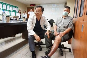 淋巴水腫有解 高長靜脈吻合術助重生