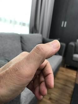 在立院衝撞到拇指無法彎曲 林為洲嘆:還被懷疑忠貞