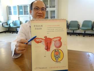 天啊!38歲婦腹痛劇烈 竟是輸卵管轉進子宮韌帶