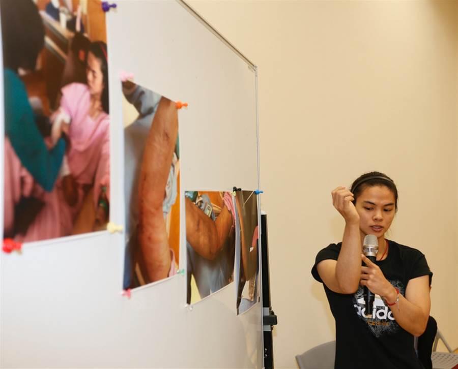 許淑淨去年6月4日親自在高雄出席記者會,展示手肘傷勢及治療過程照片,詳細說明決心引退原因。(中央社資料照)
