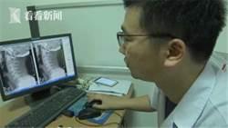 影〉家長注意! 九歲男童長時間低頭玩手機致頸椎變形
