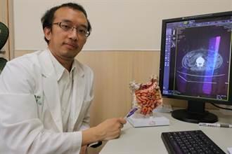 8旬婦腸套疊 竟是大腸惡性腫瘤肇禍