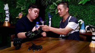 「台灣奇蹟之指」張憲良赴馬國送愛安裝義肢