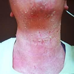 皮膚癢到抓出血水、紅腫發黑 異位性皮膚炎患者有救了