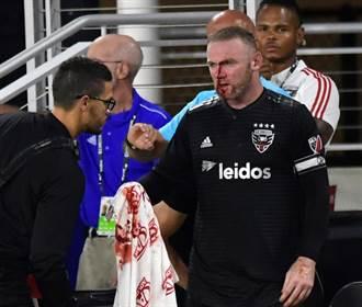美足聯賽首進球 魯尼防守挨撞血流如注