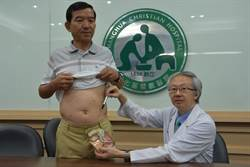 達文西手臂根除攝護腺癌 不留後遺症性福免煩惱