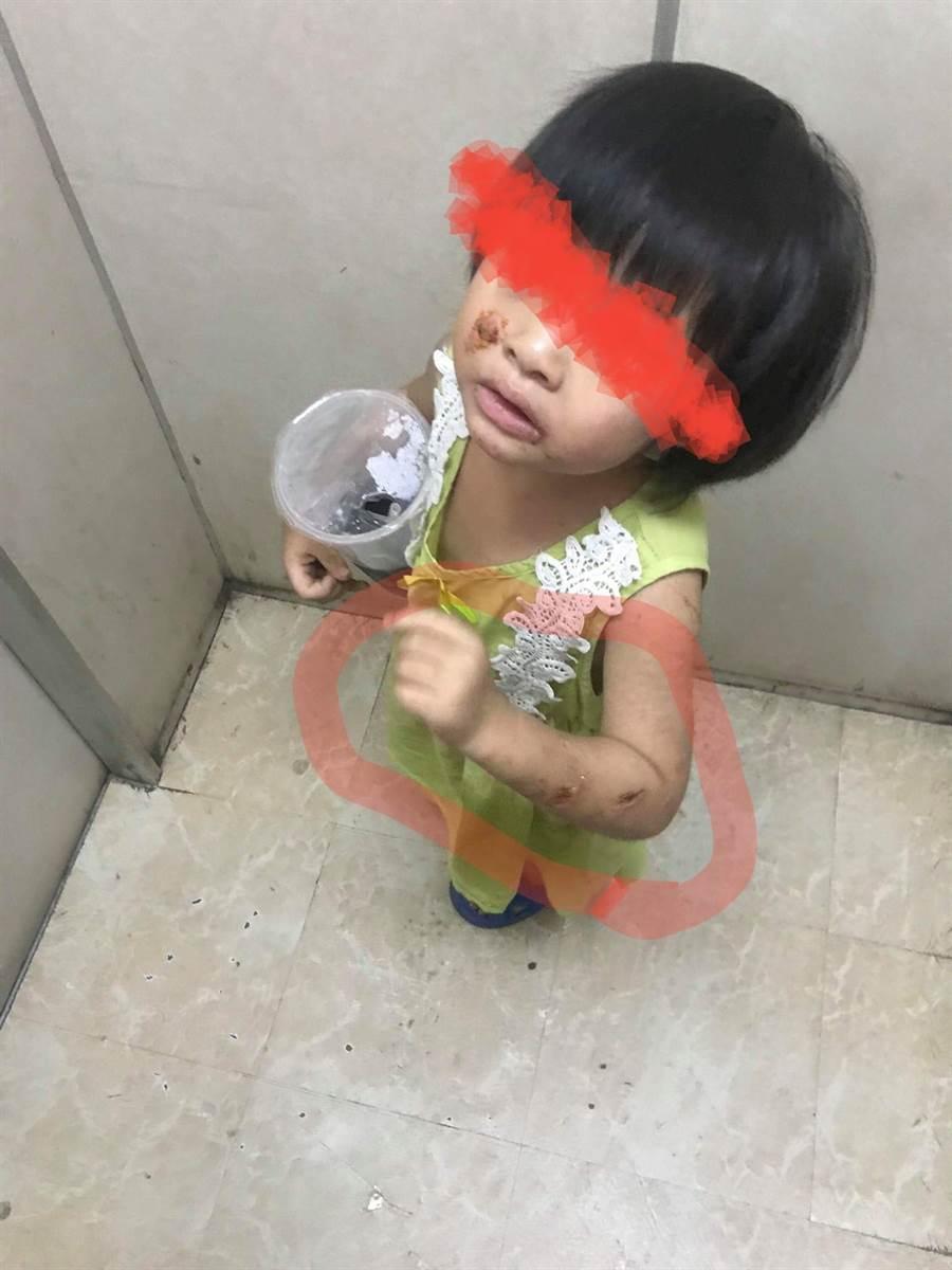台南市東區東門路一處大樓電梯今凌晨出現一名渾身是傷的女童。(曹婷婷翻攝)