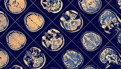 巴金森氏症新解!全球首次用幹細胞讓大腦重生