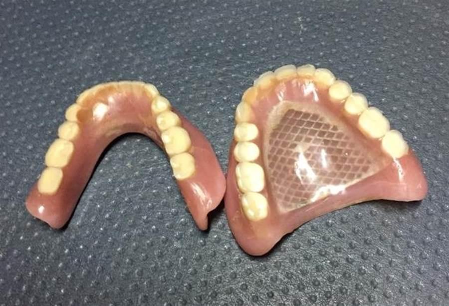 李姓老奶奶吃龍眼時,將價值7萬元的假牙取下放旁邊,結果吃完後忘記假牙已取下,竟把它當垃圾跟龍眼殼一起丟掉。