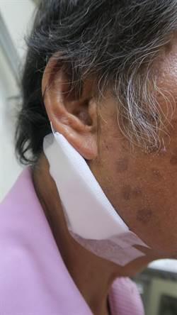 小心不要把腮腺腫瘤誤當是「牽核仔」