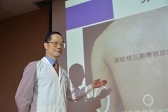 醫界新突破 台灣團隊首發現罕見皮膚病病因