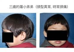 頭型怪誤以為姿勢不良 原來是罹患「顱縫早閉症」