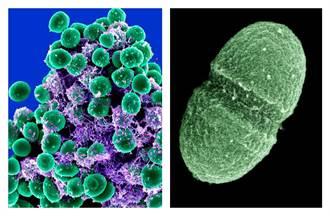 無法治癒!專家發現3種新型葡萄球菌超級細菌