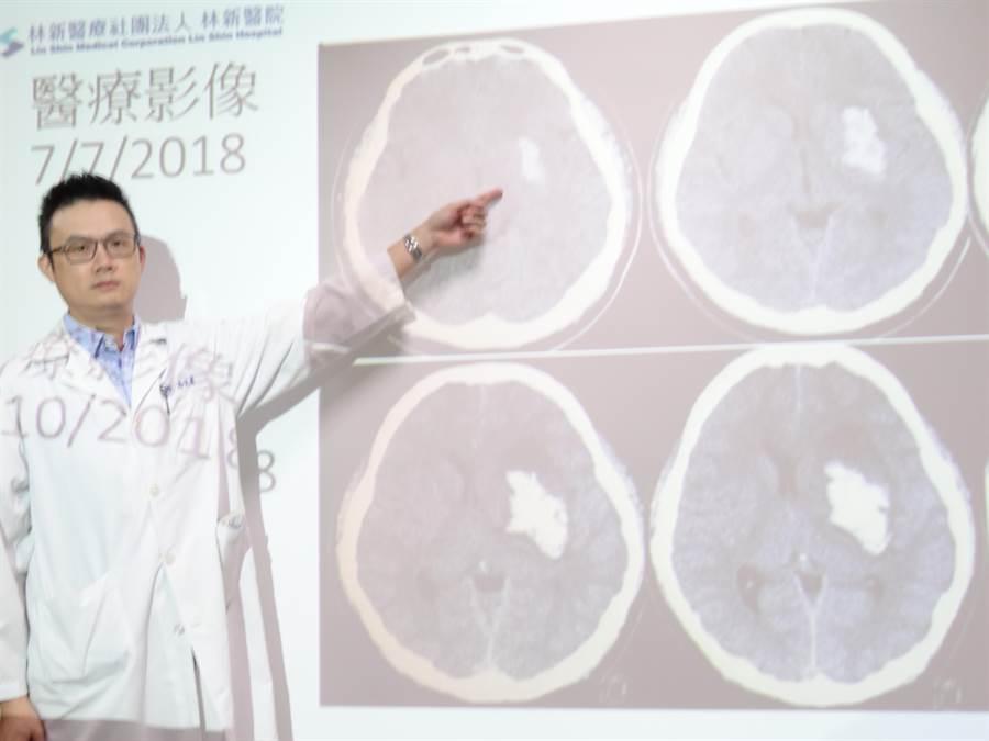 林新醫院神經外科醫師高定憲指出,洪男到院時電腦斷層掃描檢查發現其左側基底核出血,原先血塊不大(上排影像),經3天觀察發現血塊已擴大(下排影像)並壓迫到腦神經。(馮惠宜攝)