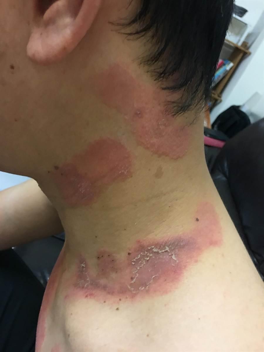 張姓上班族身上出現搔癢性紅疹,他就醫擦藥卻無效,到醫院檢查才知罹患帶狀皰疹。(林欣儀翻攝)