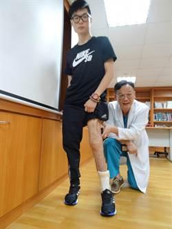 刀下留腳!3年30次手術 醫助21歲陽光男斷腿重生