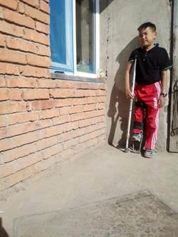 嬰兒時期摔斷腿 蒙古醫師害他長短腳 台灣醫療團隊伸援手