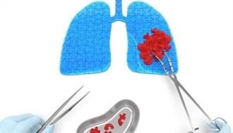 肺裡有結節! 需要馬上開刀摘掉嗎?