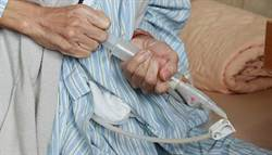 台灣鼻胃管病人這麼多 有沒有其他選擇?