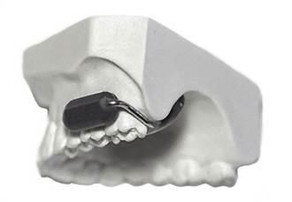 新的無線通信器裝在牙齒上 收音發送更清楚