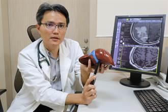 B肝變肝癌轉移腦部 企業主管勇敢抗病魔