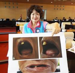 63歲獨居婦人只剩1顆門牙怎麼吃?市議員為阿嬷請命