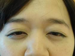 粉領族美麗大眼變泡泡眼  就醫竟是得這個病