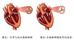 名.醫.問.診-經導管主動脈瓣膜置放術 治療老年化主動脈狹窄的新利器