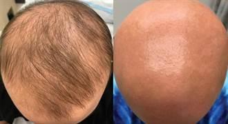 新發現  皮膚病新藥杜避炎可治禿頭