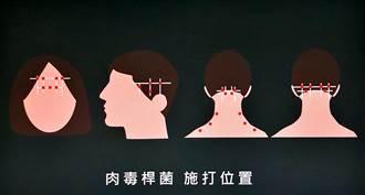 肉毒桿菌不只美容 治偏頭痛見效