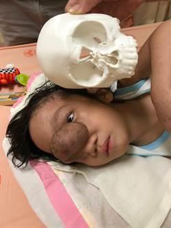 北榮與羅東聖母醫院攜手  成功救治菲律賓顱顏罕病兒