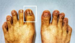 指甲長出「恐怖黑線」 小心可能是皮膚癌