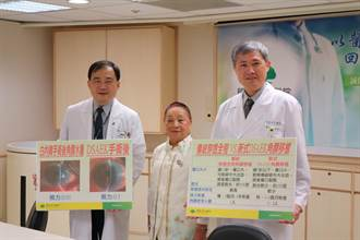 角膜內皮細胞移植   拯救阿嬤視力