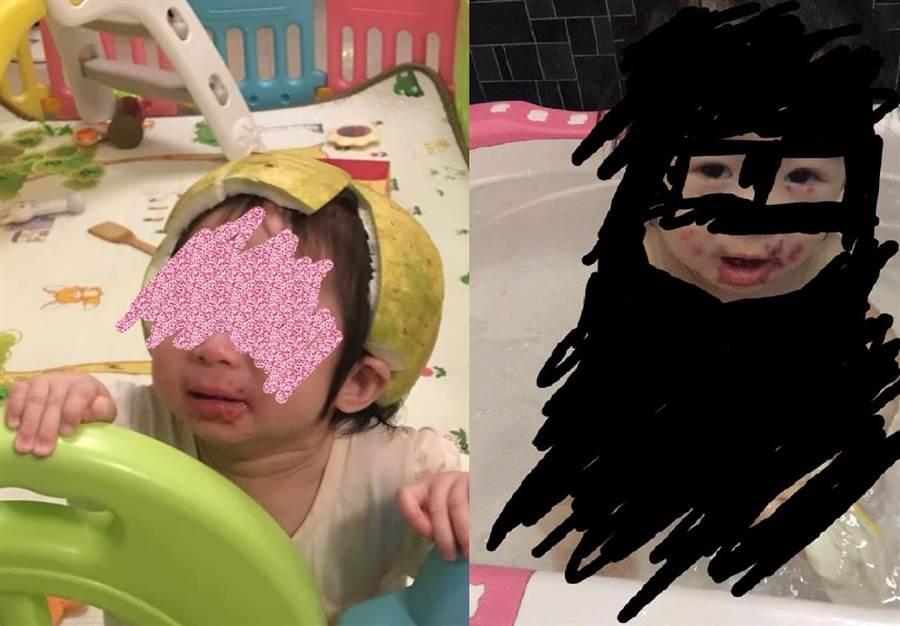 1歲半妹染皰疹病毒「半張臉爛掉」 她暴怒:大人口水很髒!(圖/翻攝自《爆怨公社》)