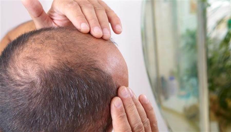 (男女性禿頭、掉髮的原因不太一樣,男性較多是雄性禿或壓力禿。圖片來源:shutterstock)