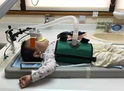 剖腹產恐害了孩子 研究證實增加寶寶氣喘、過敏機率
