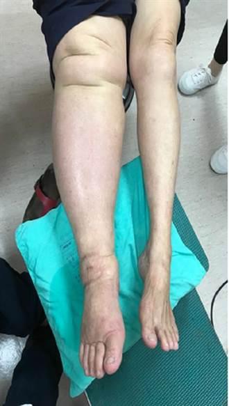 移植淋巴結消除 下肢不再假性粗腿