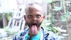 破紀錄的超長舌頭! 尼泊爾男子竟能自舔額頭嚇壞小孩