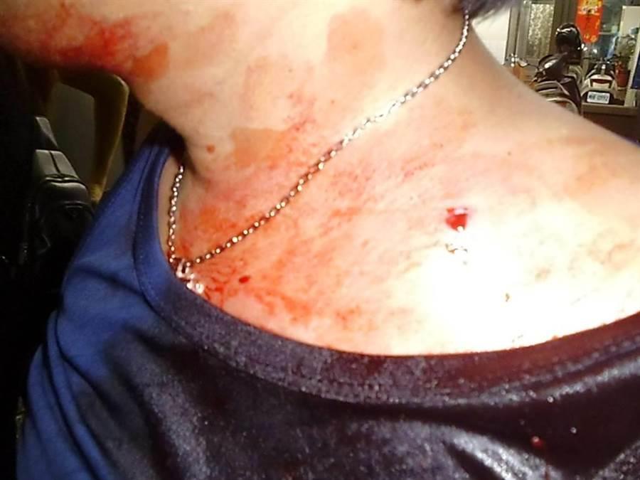 陳姓被害人因行車糾紛遭失戀的張嫌持空氣槍射傷。(謝佳潾攝)